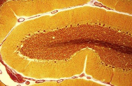 cns: Purkinje nerve cells, light micrograph