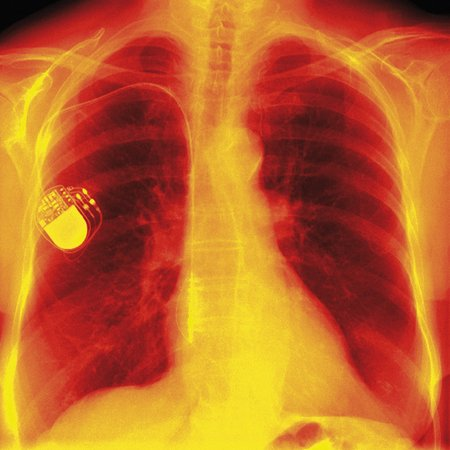 pacemaker: Heart pacemaker, X-ray