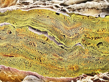 organelles: Cardiac muscle, SEM