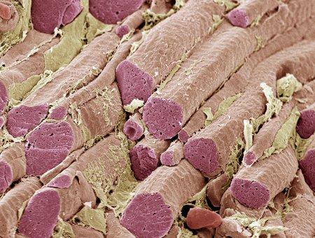 Skeletal muscle fibres, SEM