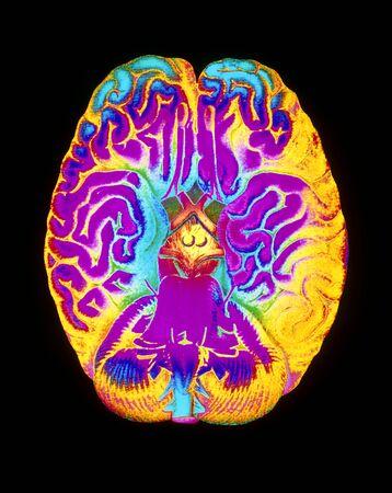 cns: Mascagni artwork of human brain & blood vessels LANG_EVOIMAGES