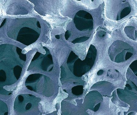 Bone tissue, SEM LANG_EVOIMAGES