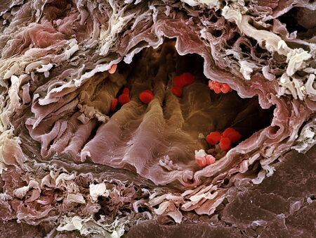 oxygenated: Artery SEM