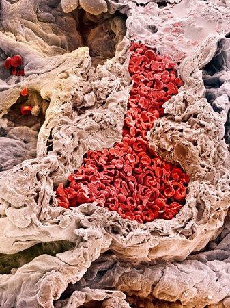 Lung blood vessel, SEM