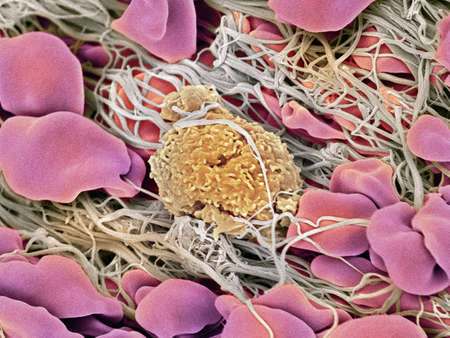 Blood clot, SEM LANG_EVOIMAGES