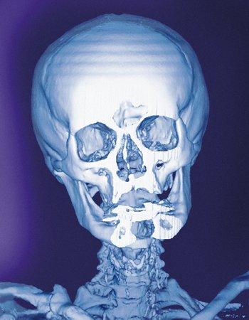 Normal skull, X-ray