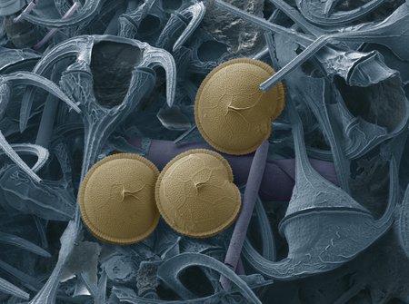 protozoan: Prorocentrum dinoflagellates, SEM