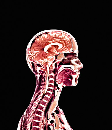 cns: Brain and spinal cord LANG_EVOIMAGES
