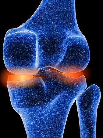 Inflamed knee cartilage, computer artwork