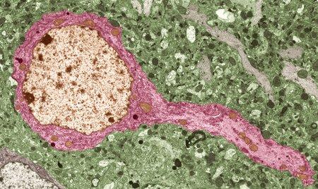 cns: Nerve cell, TEM