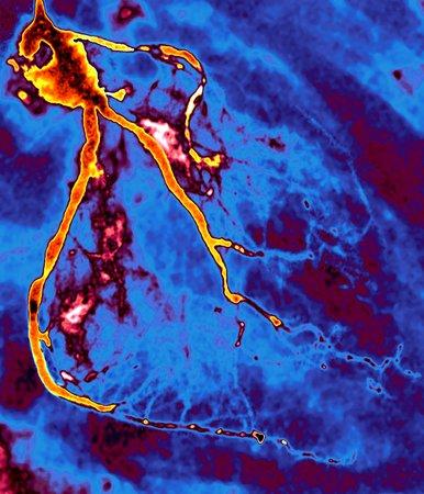 Narrowed coronary arteries, X-ray