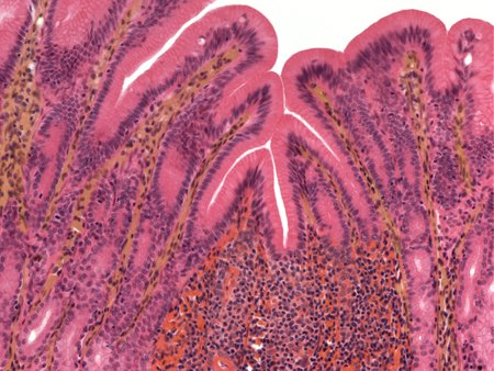 Stomach lining,light micrograph LANG_EVOIMAGES
