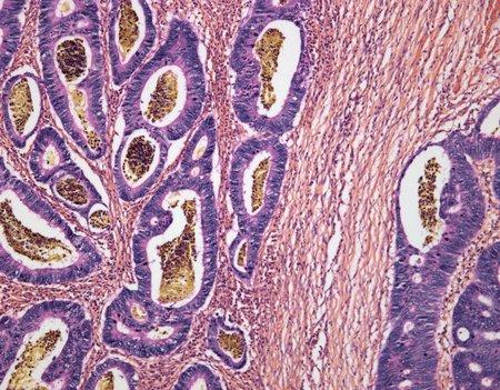 cancerous: Colon cancer,light micrograph