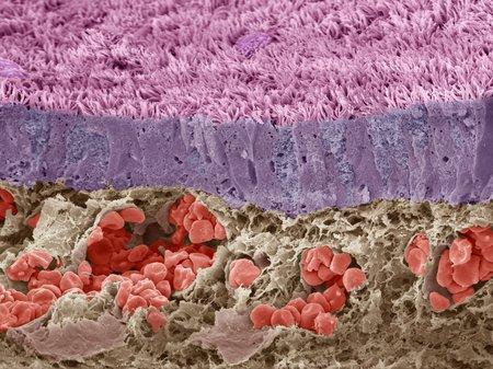 Trachea mucous membrane, SEM LANG_EVOIMAGES