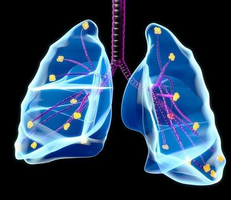 alveolos: Human lungs,artwork