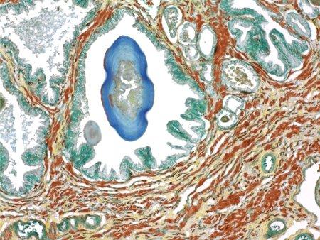 testis: Prostate,light micrograph LANG_EVOIMAGES