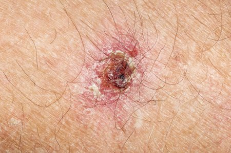 malignant growth: Skin cancer