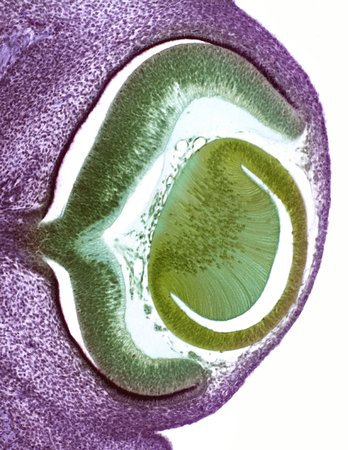 developmental biology: Developing pig eye,light micrograph LANG_EVOIMAGES