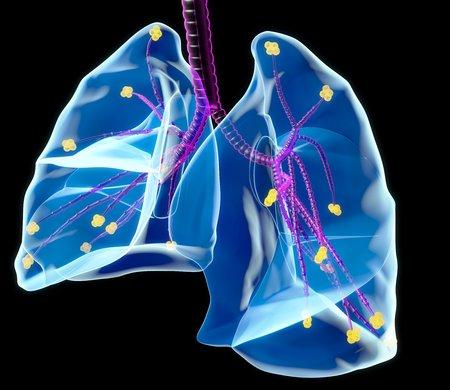 alveolos: Pulmones humanos, obras de arte