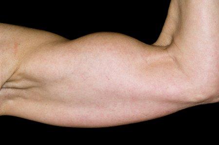 rupture: Ruptured biceps tendon