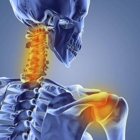 Neck and shoulder pain,computer artwork LANG_EVOIMAGES