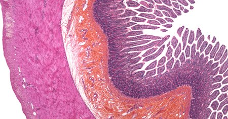 Small intestine,light micrograph LANG_EVOIMAGES