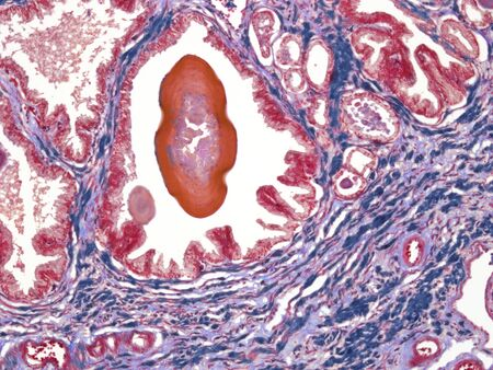micrograph: Prostate,light micrograph LANG_EVOIMAGES