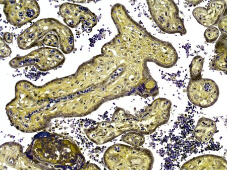 sectioned: Placenta,light micrograph