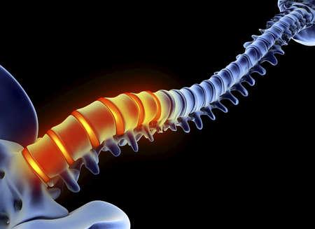 lumbar curve: Back pain,computer artwork
