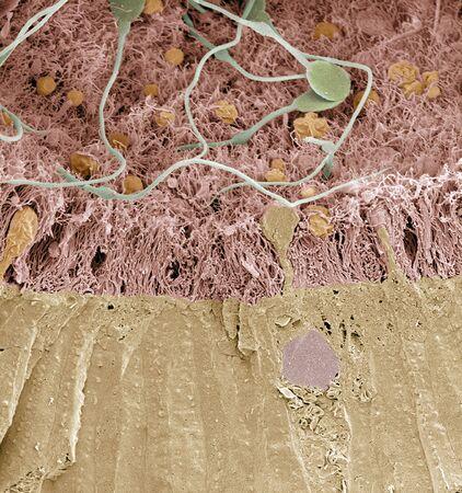 spermatozoon: Epididymis,SEM