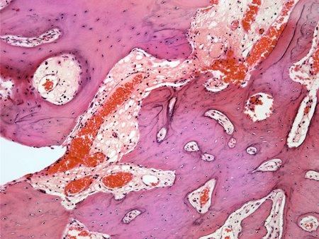 Osteoid osteoma,light micrograph