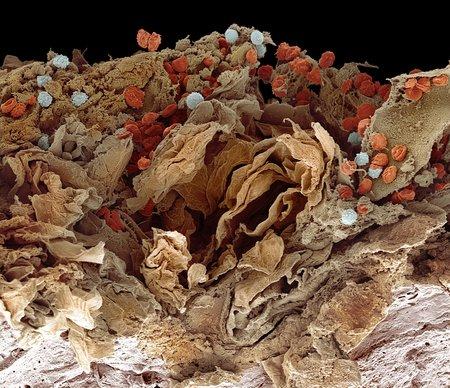 Pyoderma skin disease,SEM