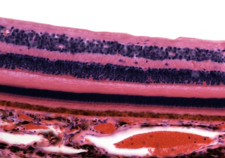 sectioned: Retina,light micrograph
