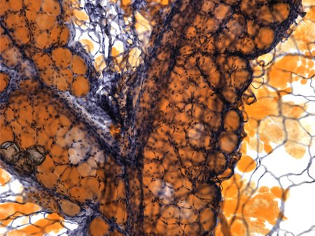 micrograph: Fat tissue,light micrograph LANG_EVOIMAGES