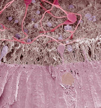 spermatozoa: Epididymis,SEM