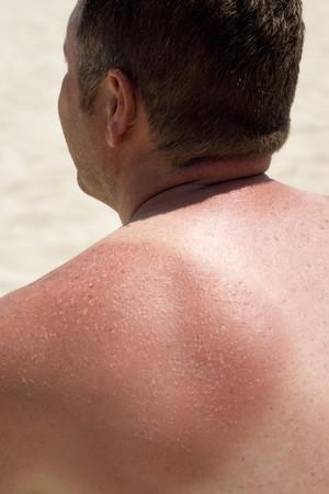 sunburnt: Sunburnt skin LANG_EVOIMAGES