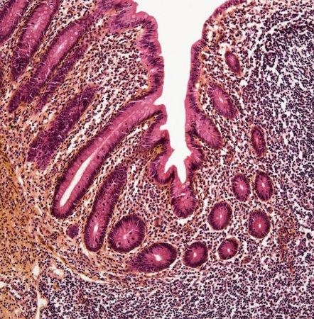 Appendicitis,light micrograph