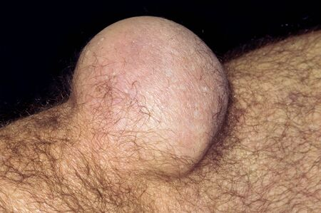 kneecap: Bursitis of the knee