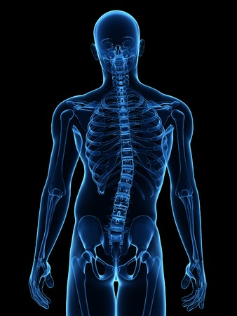 Scoliosis.Computer artwork of a man with a sideways curvature (scoliosis) of the spine