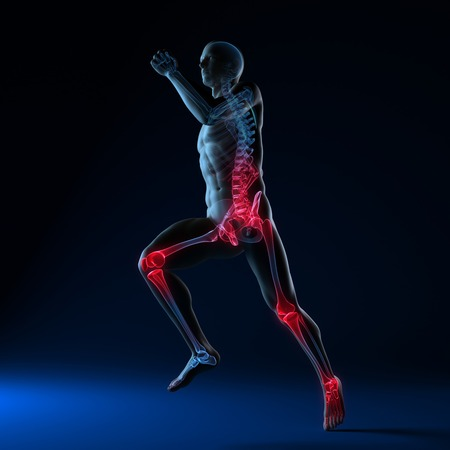 Running injuries,conceptual computer artwork