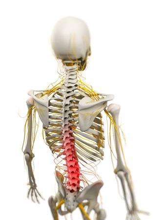 Back pain,conceptual computer artwork