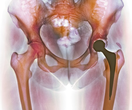 pelvis: Loosened hip replacement.Coloured X-ray of a loosened total hip replacement of the left hip (right) of a female.The right hip (left) is showing signs of arthritis