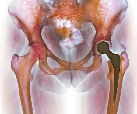 総: Loosened hip replacement.Coloured X-ray of a loosened total hip replacement of the left hip (right) of a female.The right hip (left) is showing signs of arthritis