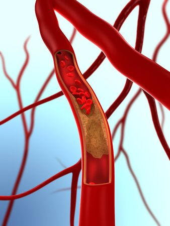 Narrowed artery.Computer artwork of an artery that is partially blocked by an atheroma LANG_EVOIMAGES