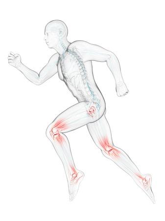 Running injuries,conceptual artwork LANG_EVOIMAGES