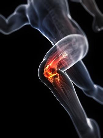 Running injury,conceptual artwork