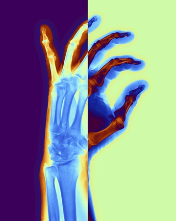 Arthritic hand.Computer-enhanced X-ray of the hand of a patient with osteoarthritis.Osteoarthritis is a degenerative disease that results in the loss of cartilage between joints,in this case between the joints of the finger bones.The healing process has l LANG_EVOIMAGES