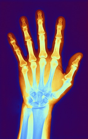 phalanges: Computer-enhanced X-ray of the hand of a patient with osteoarthritis.Osteoarthritis is a degenerative disease that results in the loss of cartilage between joints,in this case between the joints of the finger bones.The healing process has lead to the grow