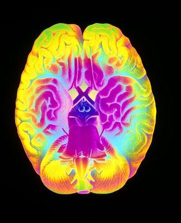 cns: Mascagni artwork of human brain LANG_EVOIMAGES