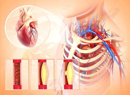 cava: Atherosclerosis,artwork